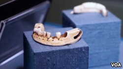One museum exhibit shows many false teeth, including a set that belonged to America's first president, George Washington. (From VOA Video)